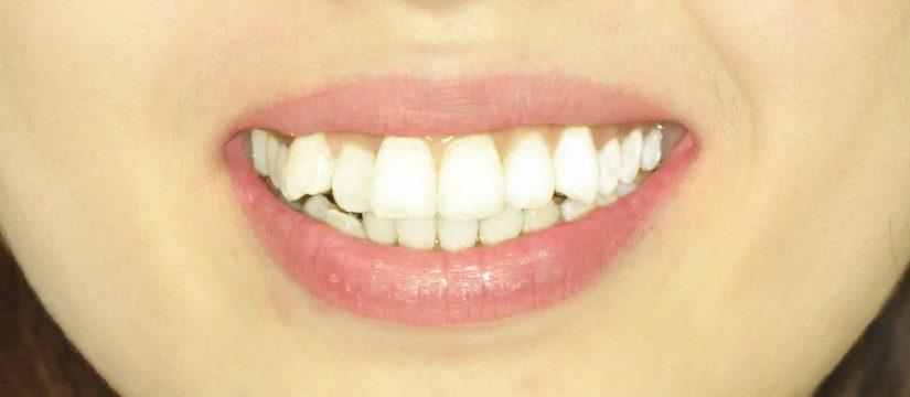 niềng răng mặt trong tại hà nội