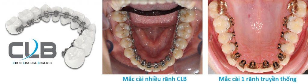 niềng răng mặt trong công nghệ cao tại hà nội 2
