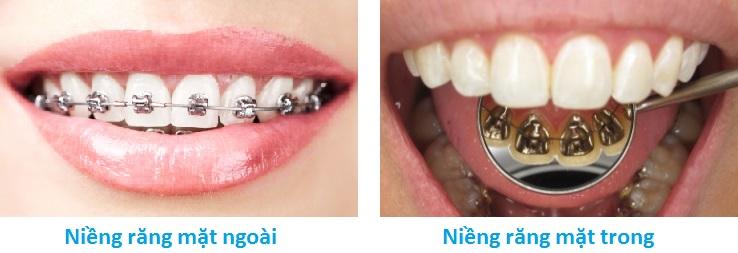 niềng răng mặt trong công nghệ cao tại hà nội 1