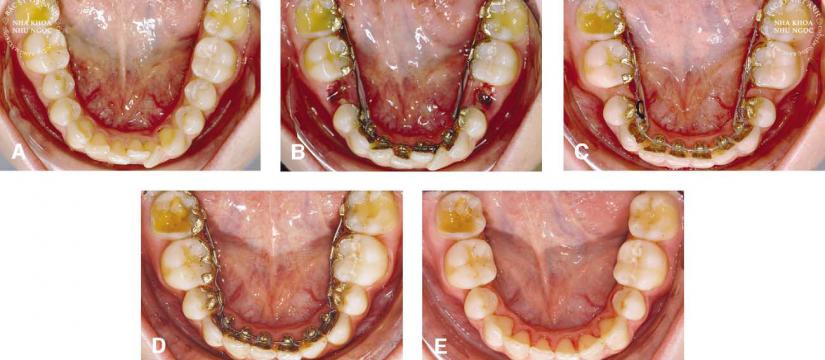 niềng răng măt trong ngoc viêt
