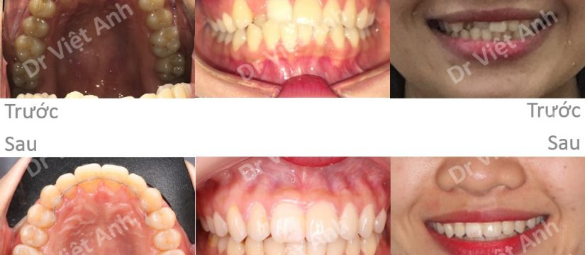 niềng răng mặt trong mất bao lâu