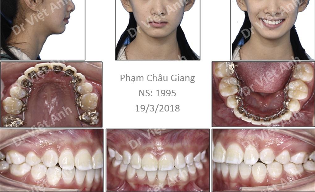 niềng răng mặt trong lưỡi hà nội