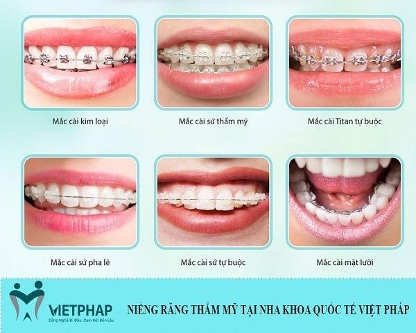 top 5 nha khoa niềng răng mặt trong hà nội 1