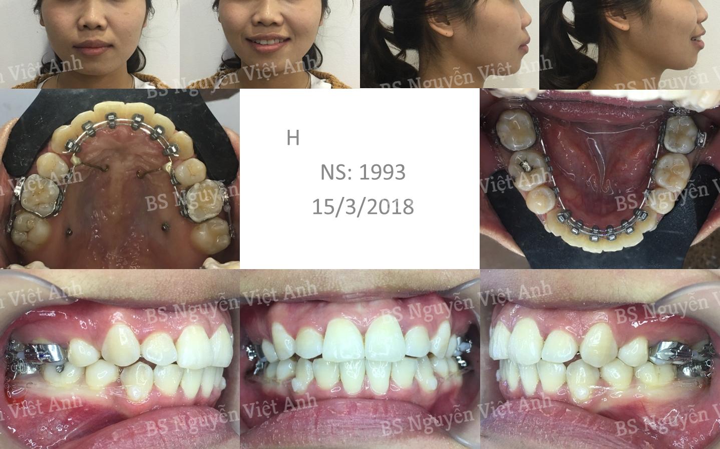 niềng răng mặt trong tại hà nội 2