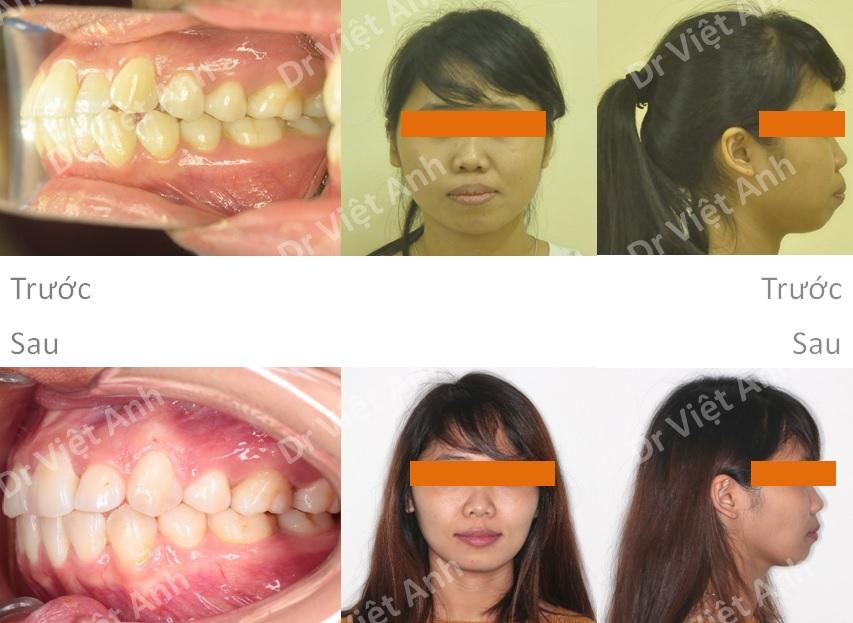 niềng răng mặt trong tại hà nội 4
