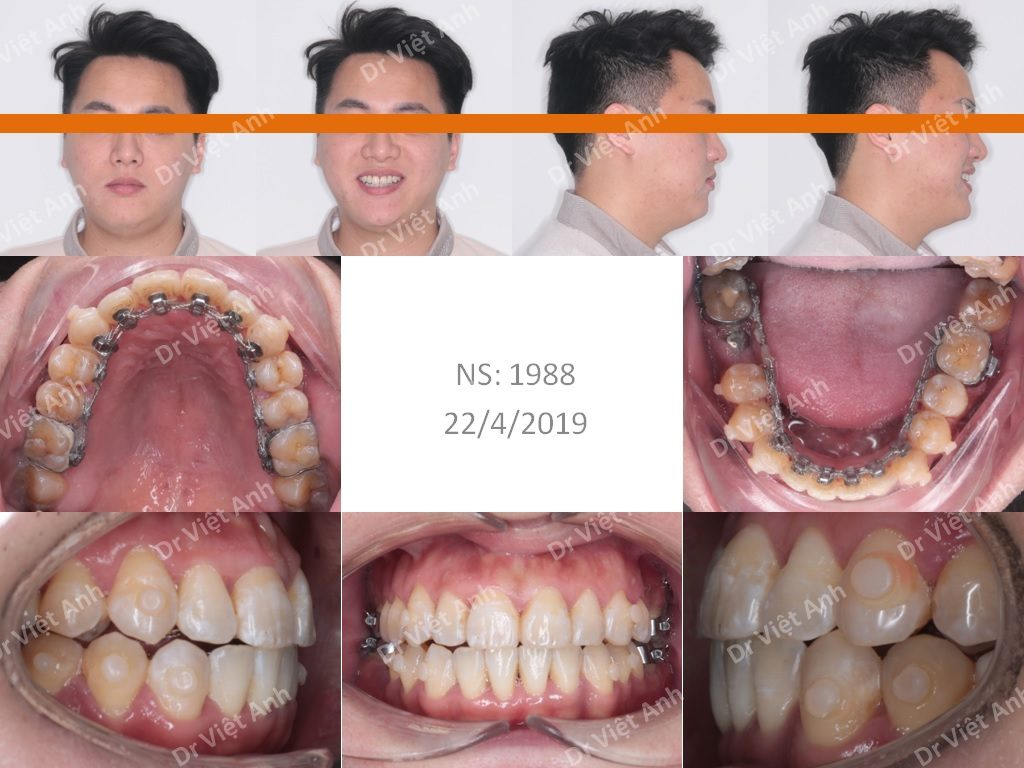 Niềng Răng Mặt Trong Hà Nội 1