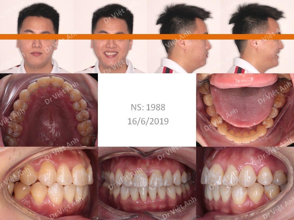 Niềng Răng Mặt Trong Hà Nội 2