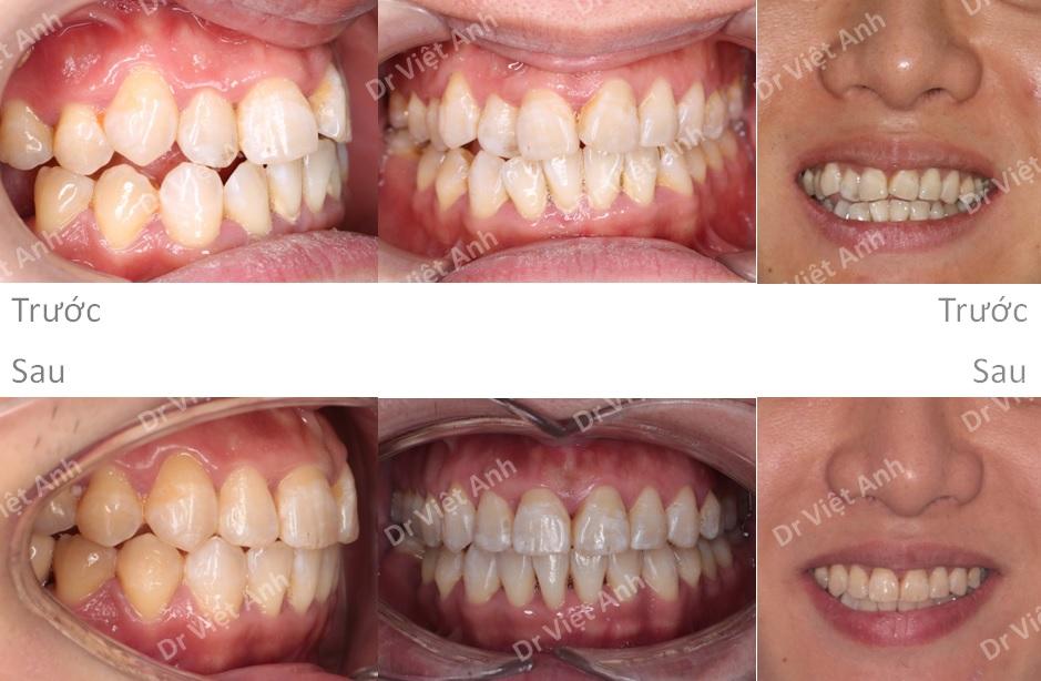 Niềng Răng Mặt Trong Hà Nội 4