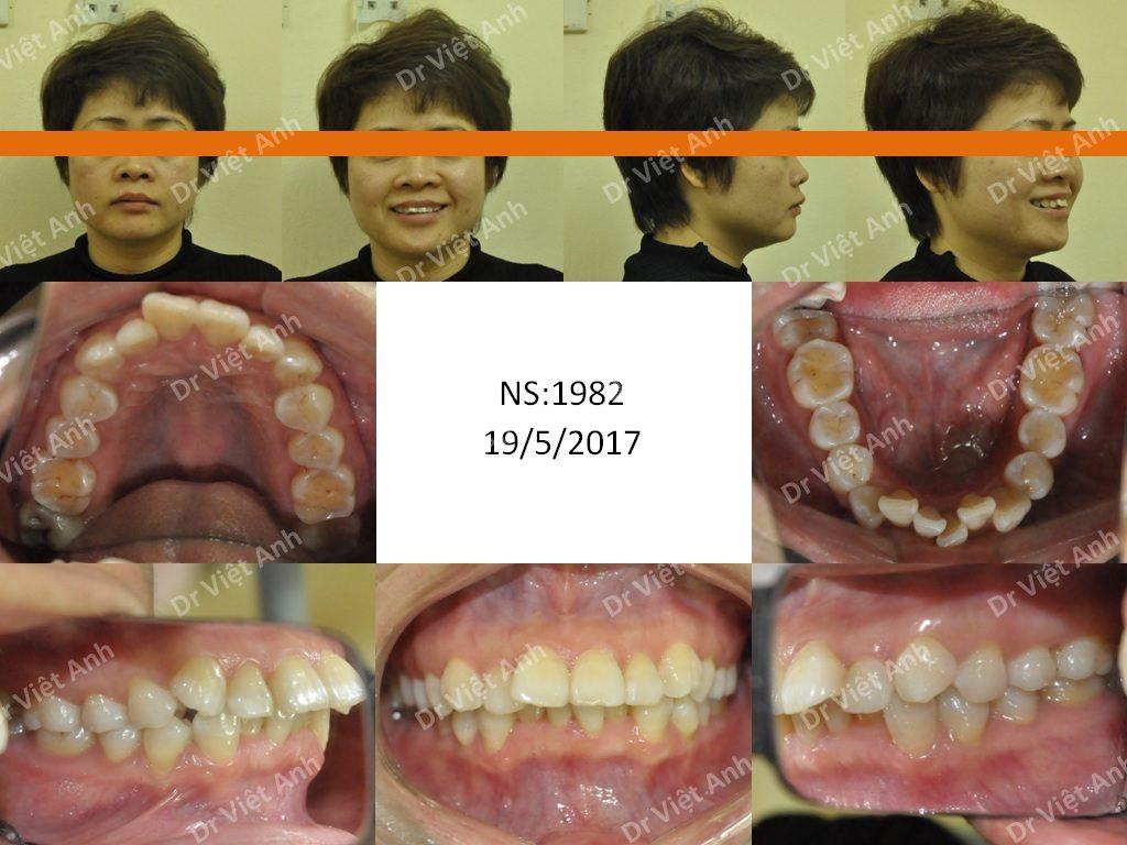 Niềng răng mặt trong chuyên sâu tại Hà Nội