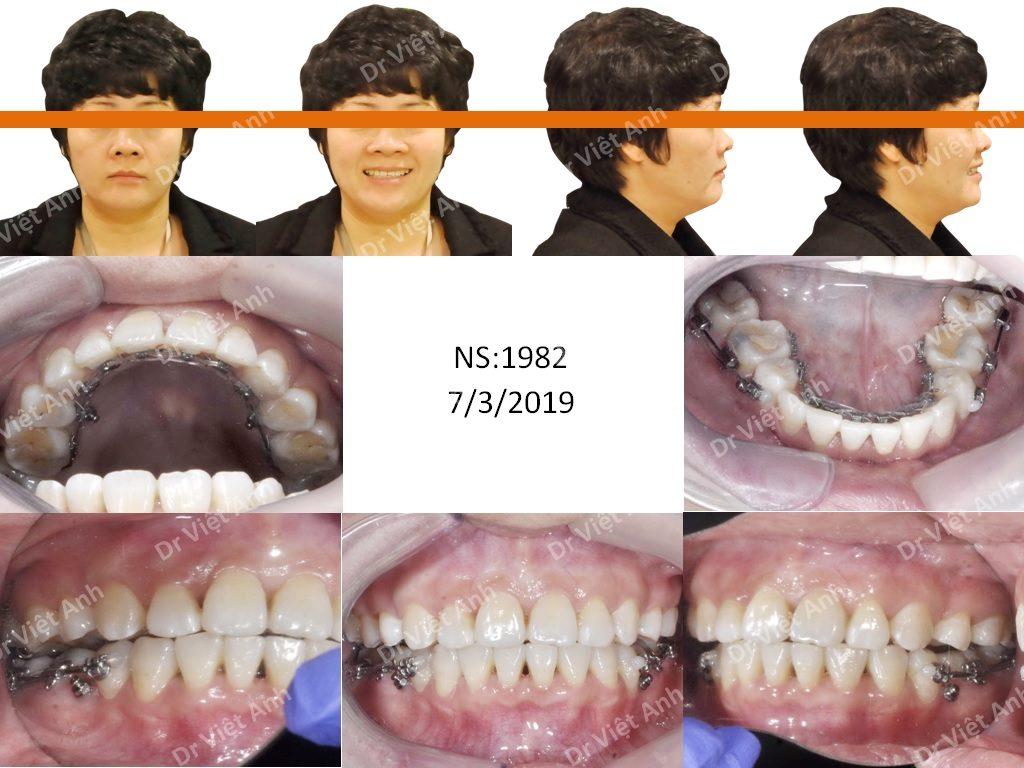 Niềng răng mặt trong chuyên sâu tại Hà Nội 1