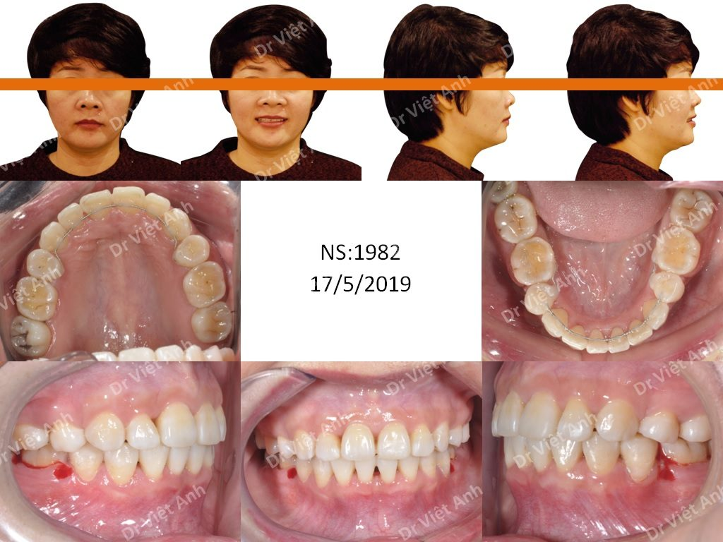 Niềng răng mặt trong chuyên sâu tại Hà Nội 2