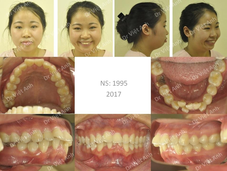Niềng răng hô, lộn xộn nặng, mất răng hàm lớn