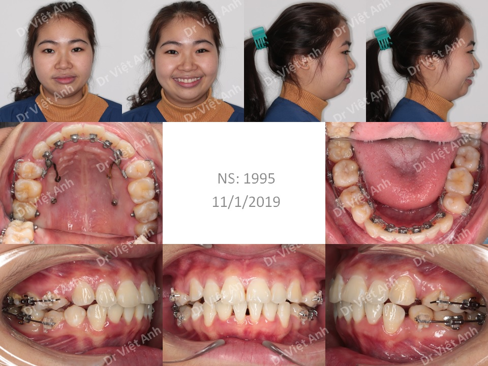 Niềng răng hô, lộn xộn nặng, mất răng hàm lớn 1
