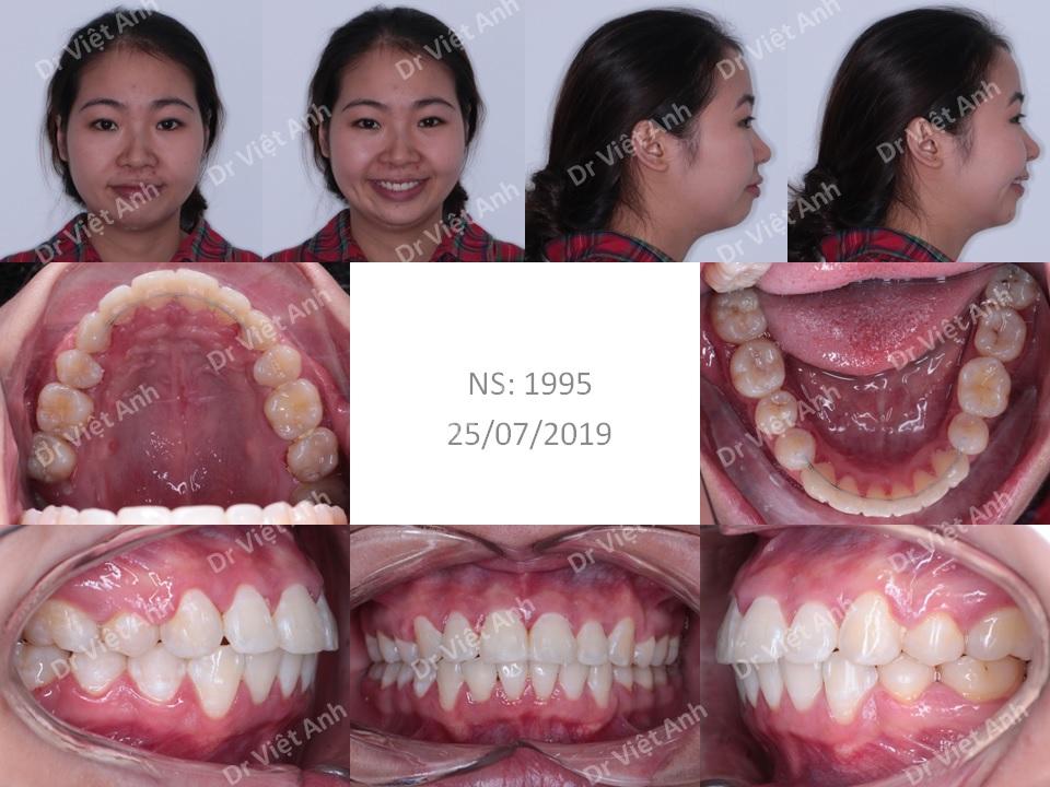 Niềng răng hô, lộn xộn nặng, mất răng hàm lớn 2