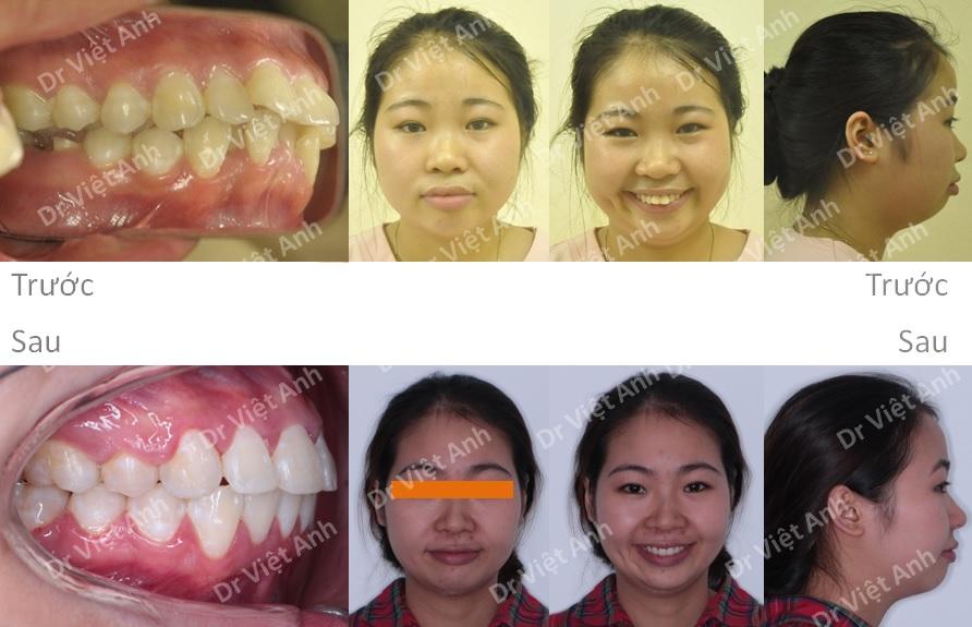 Niềng răng hô, lộn xộn nặng, mất răng hàm lớn 3