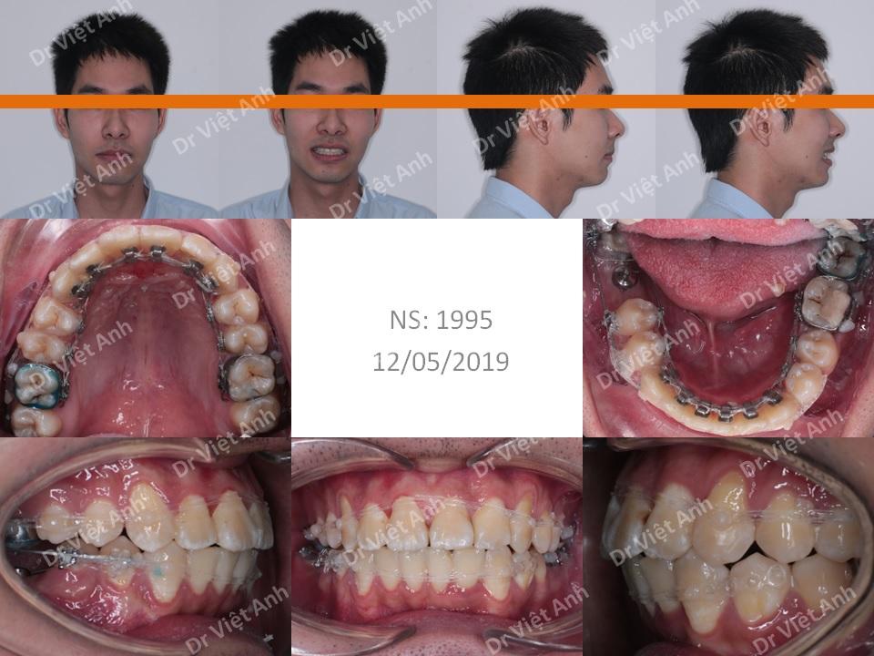 Chỉnh nha mặt lưỡi  - niềng răng sinh viên 1