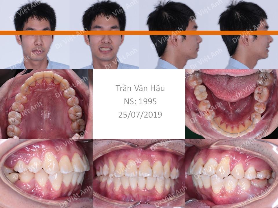 Chỉnh nha mặt lưỡi  - niềng răng sinh viên 2