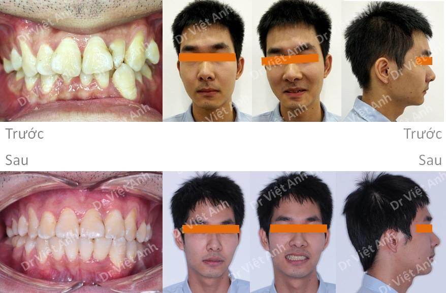 Chỉnh nha mặt lưỡi  - niềng răng sinh viên 3