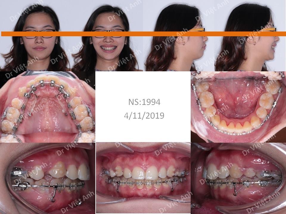 Niềng răng mặt trong hàm trên, khắc phục tình trạng hô và cằm lẹm 1