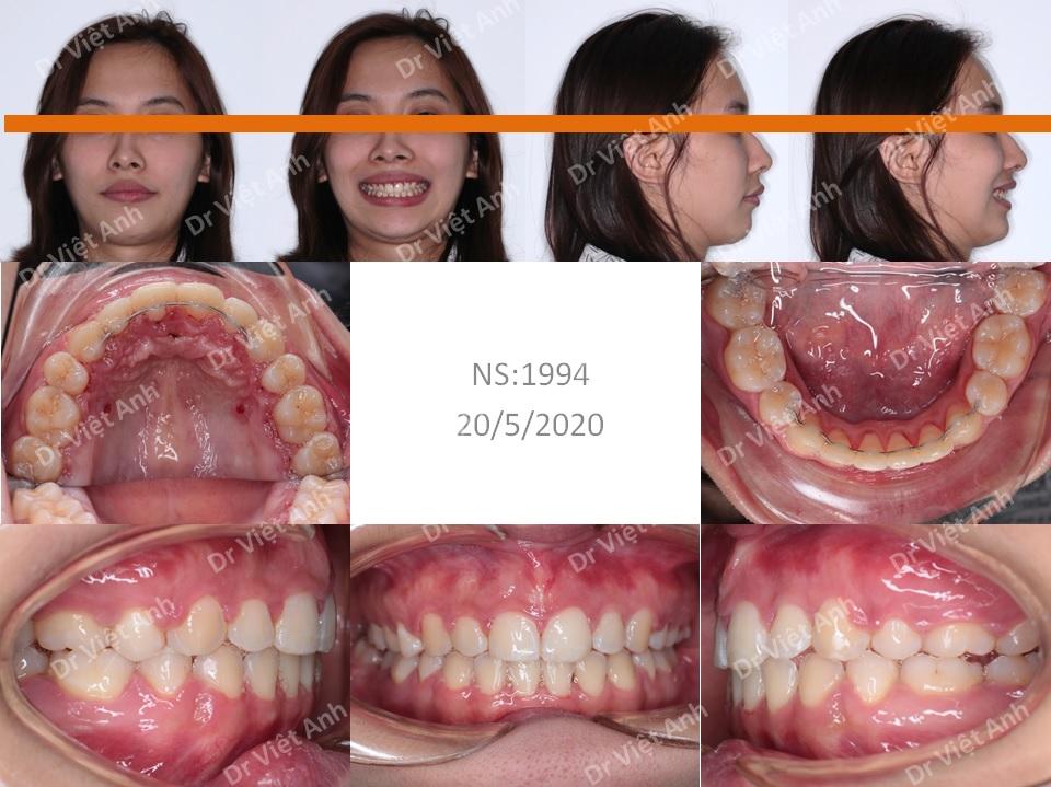 Niềng răng mặt trong hàm trên, khắc phục tình trạng hô và cằm lẹm 2