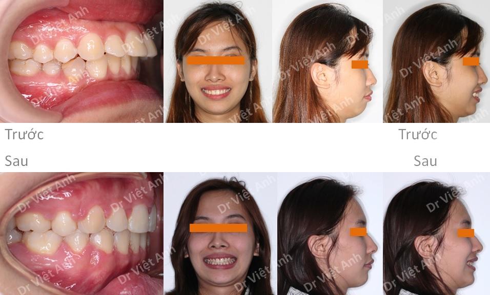 Niềng răng mặt trong hàm trên, khắc phục tình trạng hô và cằm lẹm 3