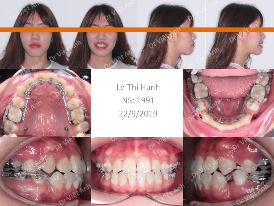 Trường hợp răng lộn xộn, hô được niềng răng thành công bằng mắc cài mặt lưỡi 2