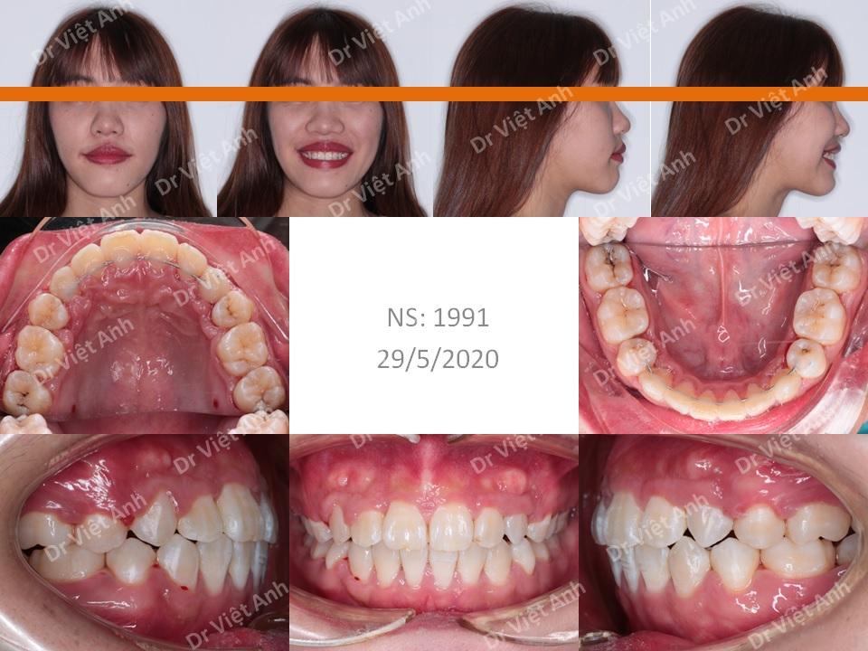 Trường hợp răng lộn xộn, hô được niềng răng thành công bằng mắc cài mặt lưỡi 1