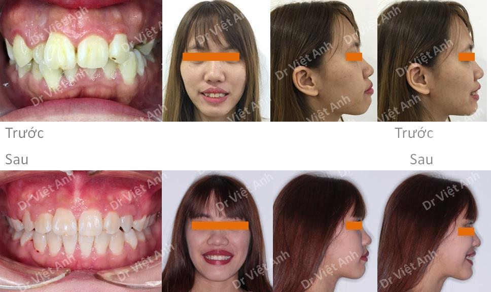 Trường hợp răng lộn xộn, hô được niềng răng thành công bằng mắc cài mặt lưỡi 3