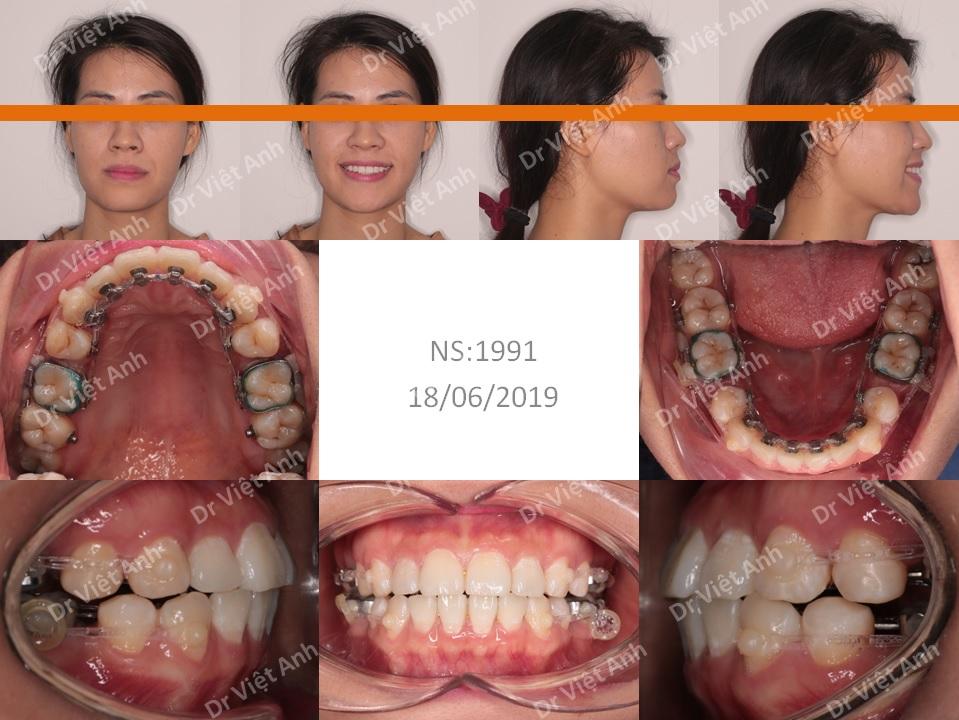 Niềng răng mặt lưỡi cải thiện góc nghiêng trên khách hàng hô nhẹ 1