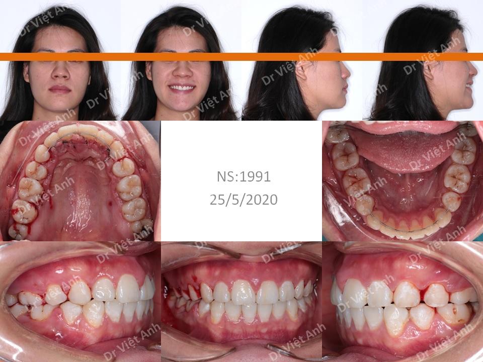 Niềng răng mặt lưỡi cải thiện góc nghiêng trên khách hàng hô nhẹ 2