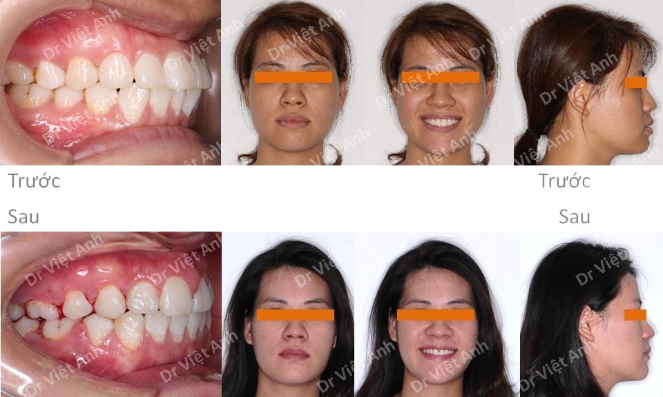 Niềng răng mặt lưỡi cải thiện góc nghiêng trên khách hàng hô nhẹ 4
